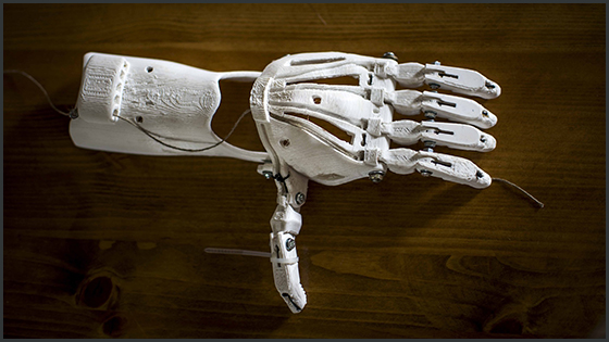 3D-printed prosthetic arm
